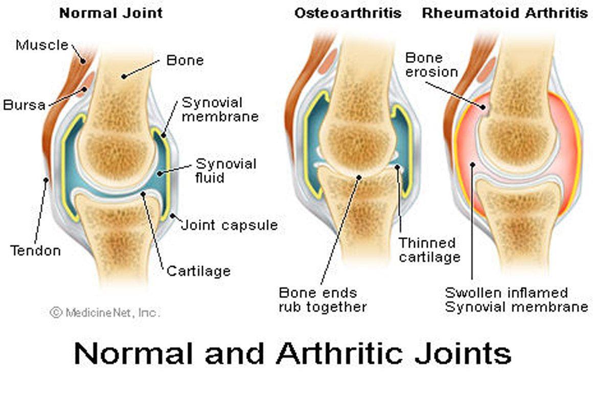 térd osteoporosis kezelésére szolgáló gyógyszerek