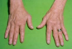 ízületi fájdalom a kéz duzzanata