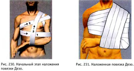 a könyökízület inak károsodása)