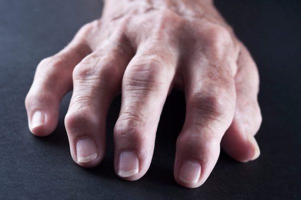 fájdalom a kéz kis ízületeiben