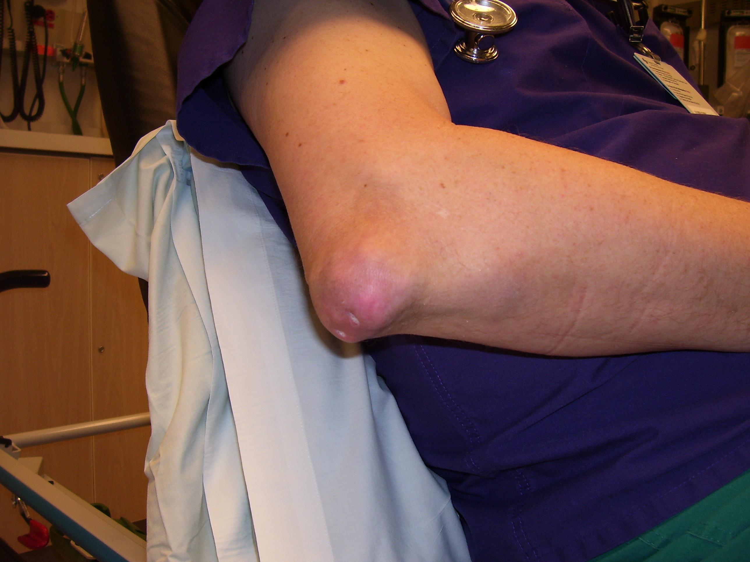 kis láb betegség csípőízületi krém