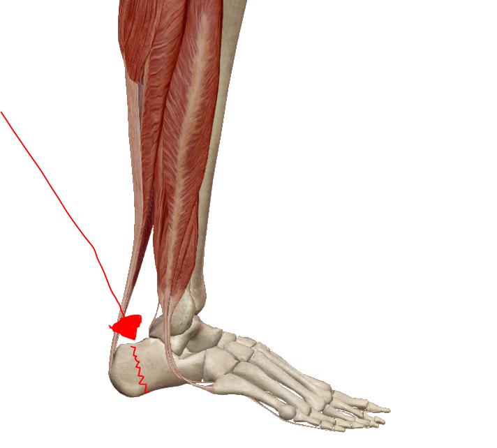 miért duzzadnak a lábak a csípőtörés után bokaszakadás-kezelés