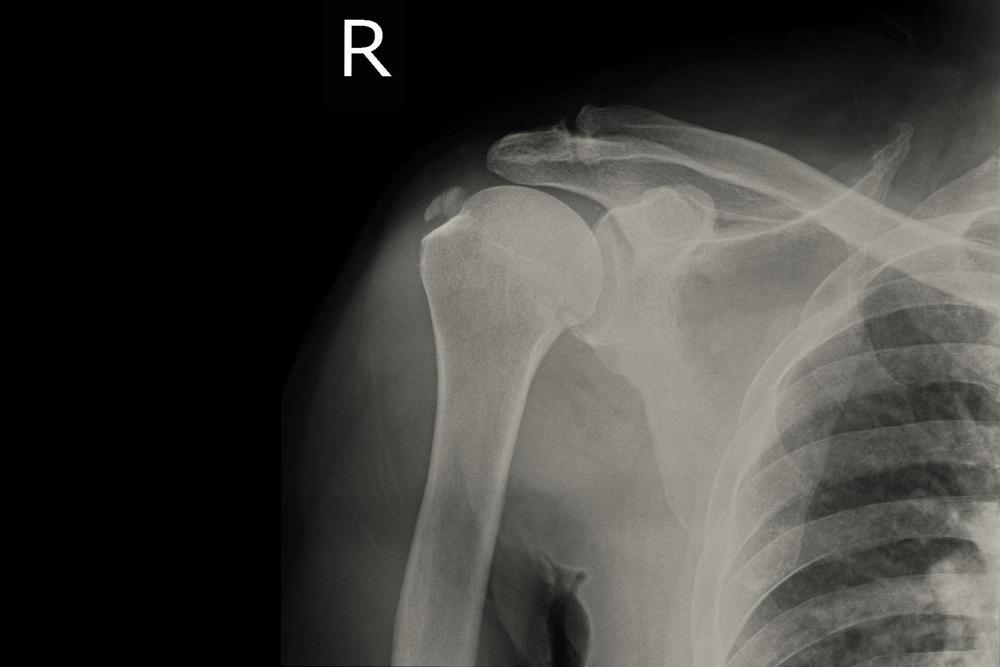 váll fájdalom capsulitis
