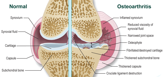 ízületi gyulladás és ízületi gyulladás, valamint a kezelés ízületi gyulladás hogyan kezeljük a térd