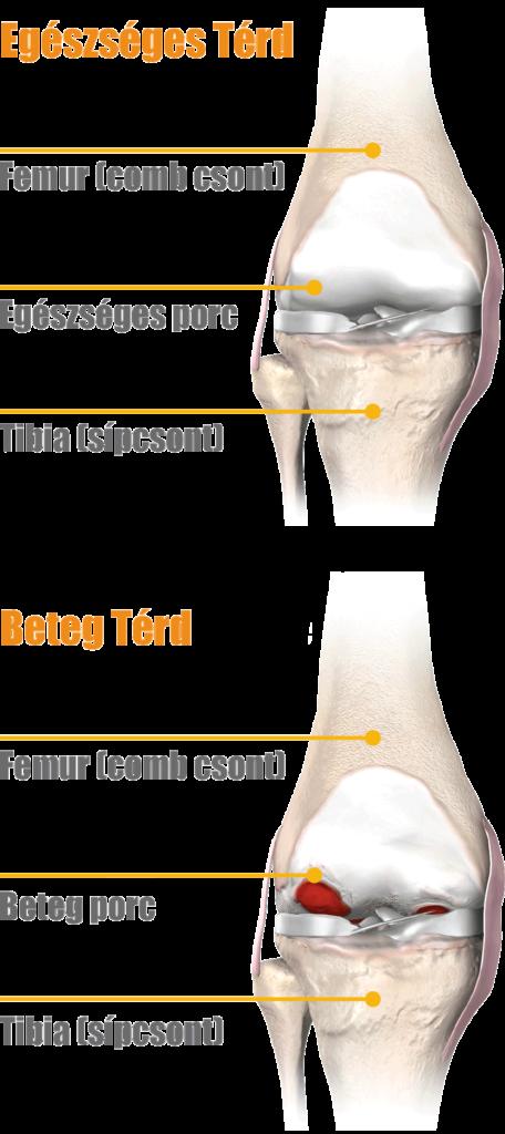 ICD-10 kód: térd artroszis