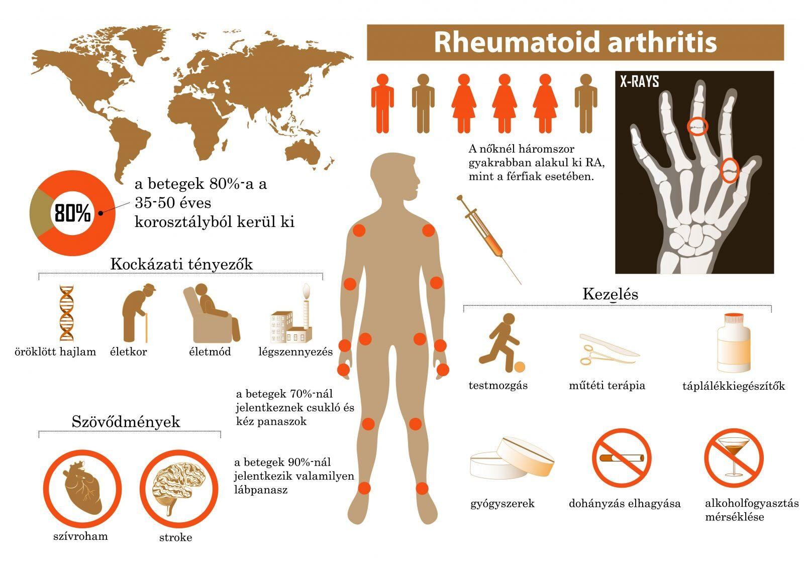 ízületi gyulladásos artritisz kezelést okoz)