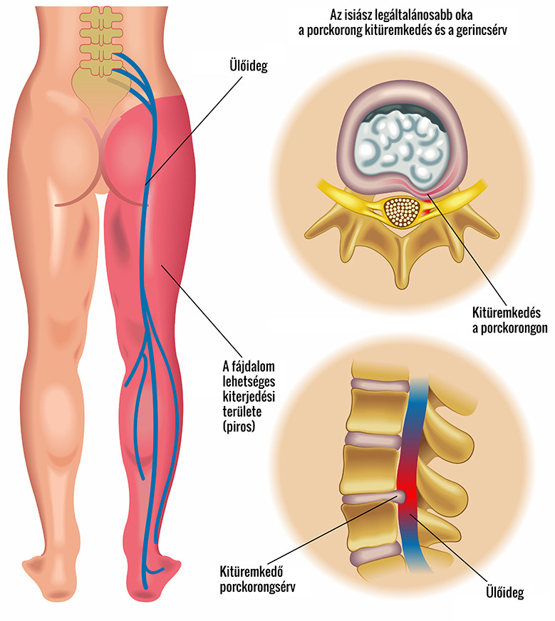 a fájdalom és a csípőízületek zsibbadtsága)