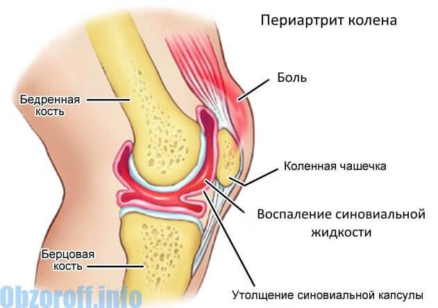 lumbosacral osteochondrosis ízületi fájdalom