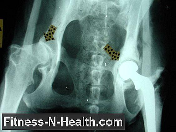 a csípőízület arthrosisának külső jelei)