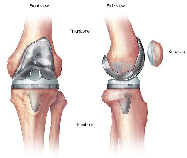 térdízületek igazán fáj, hogyan lehet segíteni hogyan lehet kezelni a karok és a lábak artrózisát