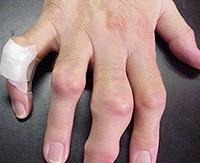 ízületi gyulladás ujjakkal)