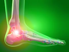 ízületi porcjavító gyógyszerek a lábujjak és a lábak ízületeinek gyulladása
