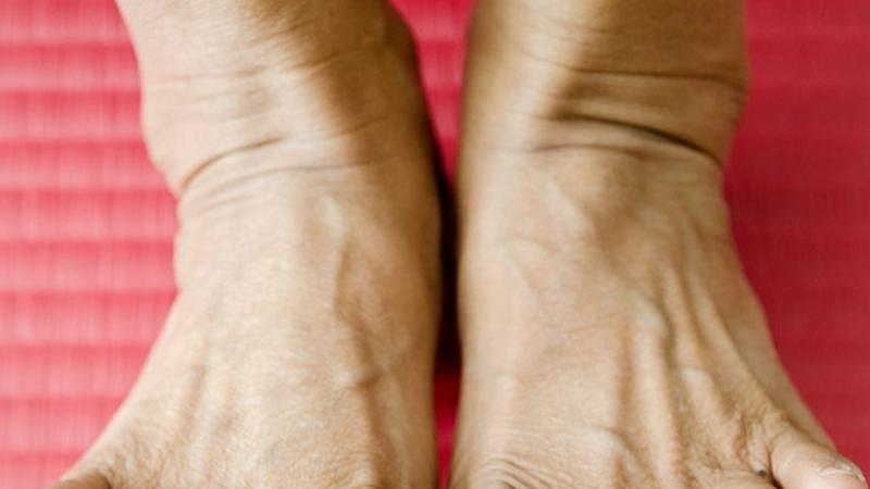 fájdalom a lábak ízületeiben, mint enyhíteni)