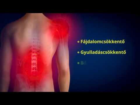 kenőcsök térdízület fájdalmainak kezelésére)