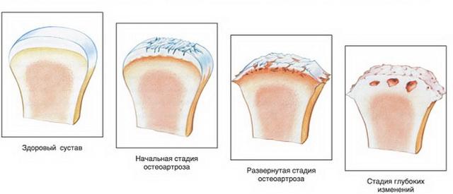 ízületi ízület 1-2 fokkal