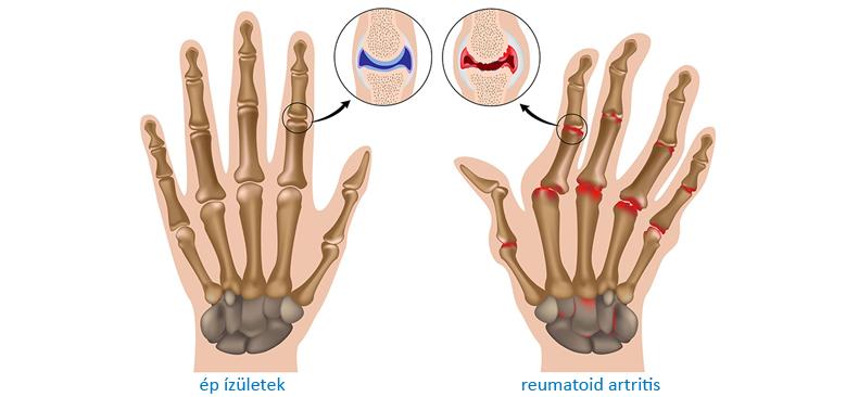 artritisz artrózisának kezelésére szolgáló módszerek a radiális ízület vállának károsodása