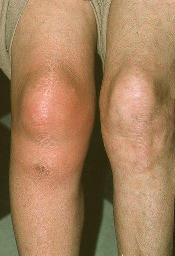 artrózis térdödéma