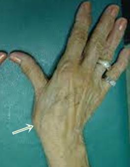 csukló osteoarthrosis kezelése