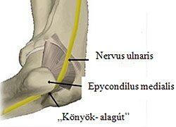 az ujjak ízületeinek fájdalmától rheumatoid arthritis és arthrosis kezelés