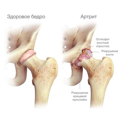 2. stádiumban a jobb csípőízület artrózisa
