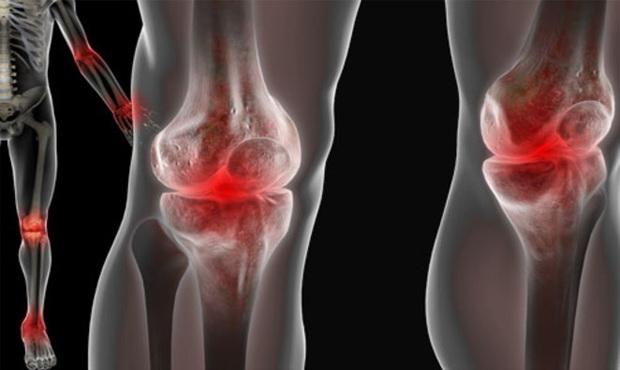 sportolók ízületi fájdalmainak készítményei)