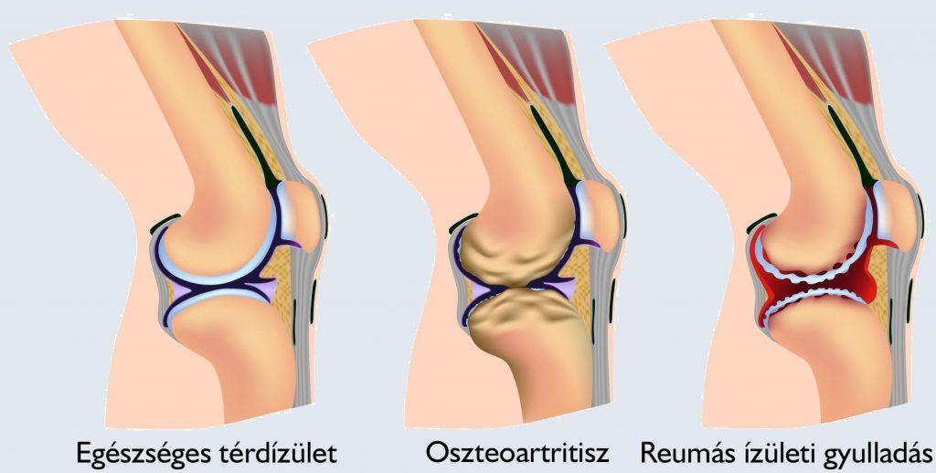 gyakorolja a térd artritiszét