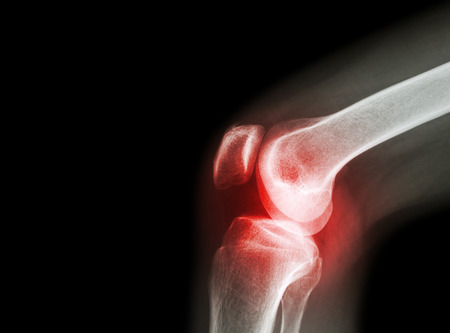 artrózis kezelése őssejtekkel