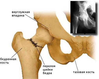Csípőprotézis beültetés izomátvágás nélkül - Budapesti Mozgásszervi Magánrendelő