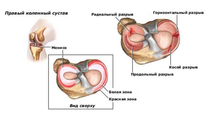 kenőcsök krémes gélei ízületi fájdalmak kezelésére a csípő coxarthrosisának konzervatív kezelése