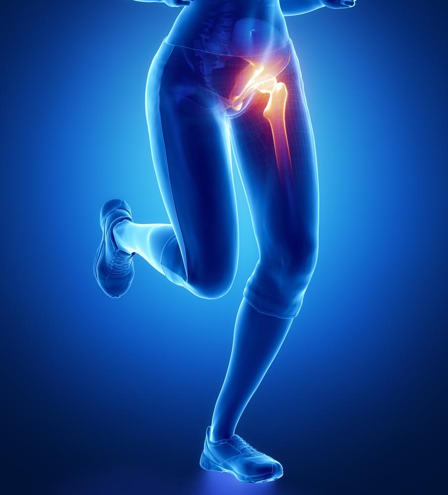csípőízületi tünetek)