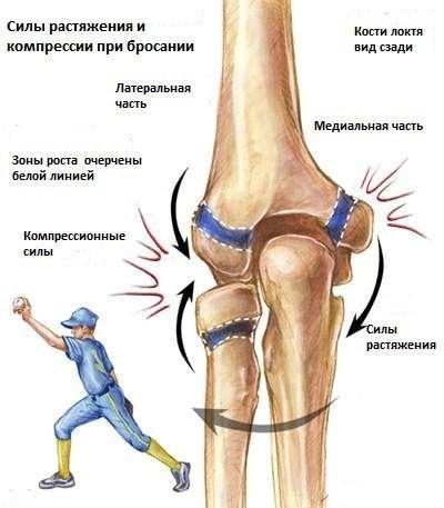 ízületi fájdalom artropathiák