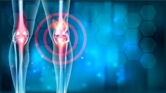 ízületi kezelés gyógyszer teraflex