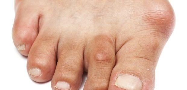 artrózis kezelése mézzel)