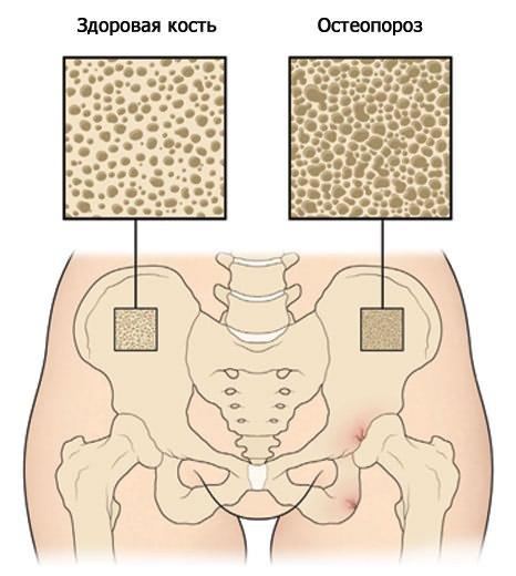 a boka deformáló artrózisa 3 fokos kezelés