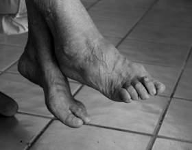 a könyökízület psoriasis ízületi gyulladása