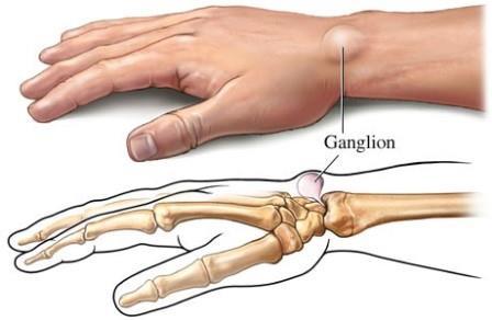a kéz ízületi műtétének kezelése)
