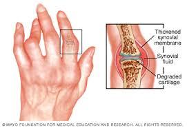 a rheumatoid arthritis elsősorban az ízületeket érinti az ízületek jobbra fájnak