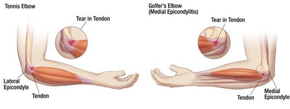 a térd artrózisának gélei