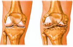 a térd artrózisának kezelése fóliával