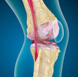a térdízület első stádiumú kezelés gonarthrosisának kezelése