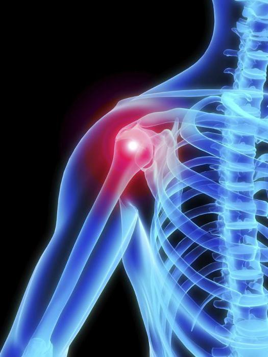 mi az ízületi gyulladás és hogyan kezelik artrózisos kezelés zsírral