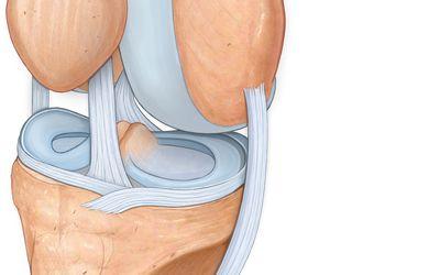 áttekintést nyújt a térd artrózisának kezeléséről
