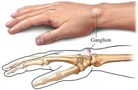 artrózis a csukló ízületeiben