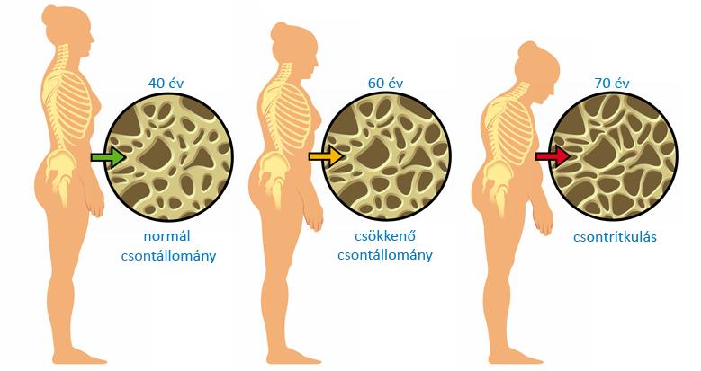 artrózis és csontritkulás kezelése