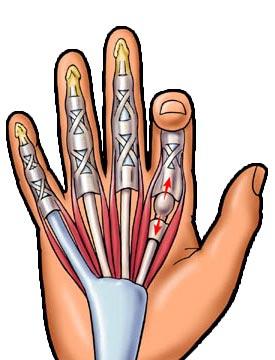 A lábujjak deformációjának típusai: okok, korrekciós módszerek