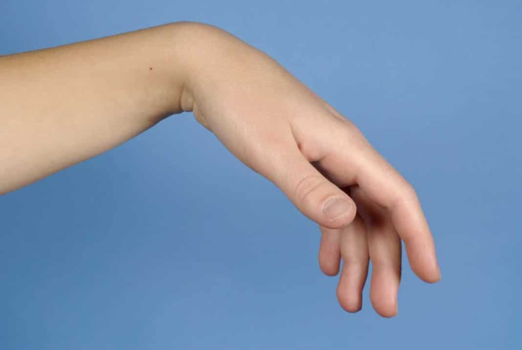 az alkar és a kéz könyökízületének károsodása)