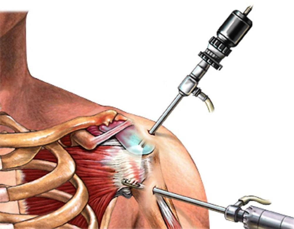kenőcs a vállízület ligamentumai számára)