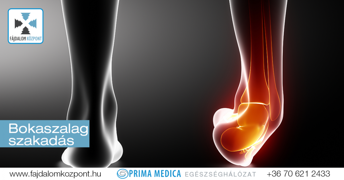 Bokasérülések, bokaszalag szakadás, bokaszalag sérülések