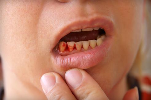 ízületi fájdalom a száj megnyitásakor