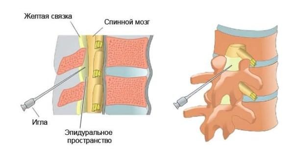 A mellkasi gerinc csontozatja
